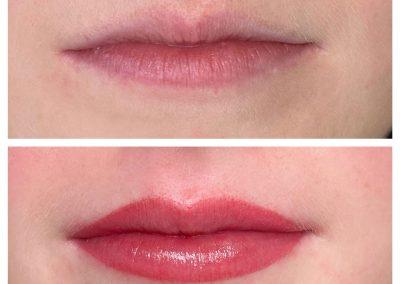 Lips-7